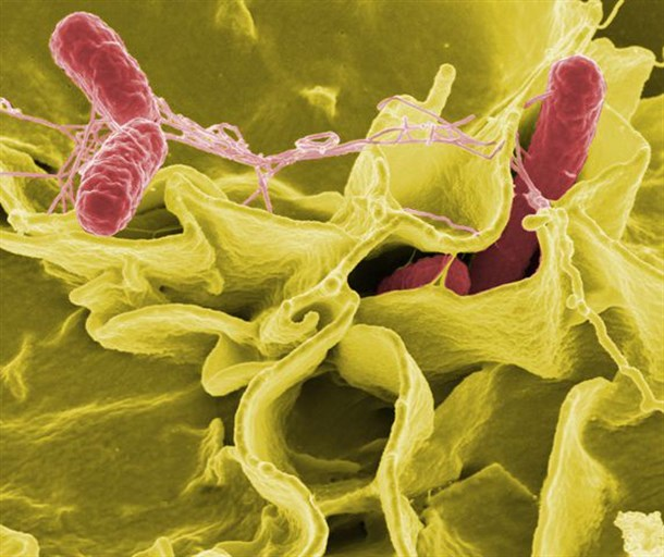 "Bacteria of salmonella, photo from ""Wikipedia""."